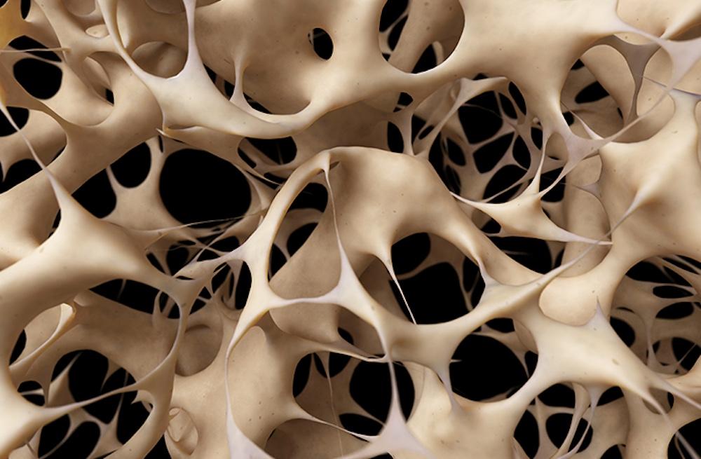 Osteoporosis National Osteoporosis Foundation